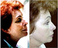 Műtét nélkül - 8 nap alatt 15-20 évet fiatalodhat!